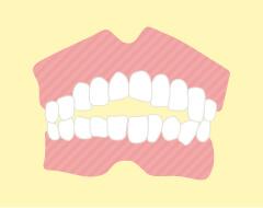 開咬(前歯で噛めなくなること)