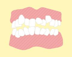 叢生(前歯のデコボコ、乱杭歯)